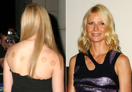Gwyneth Paltrow and Jennifer Anniston acupuncture cupping marks
